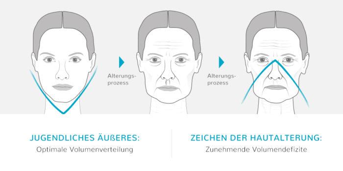 Gesichtsverjüngung Gesichtsbeispiel