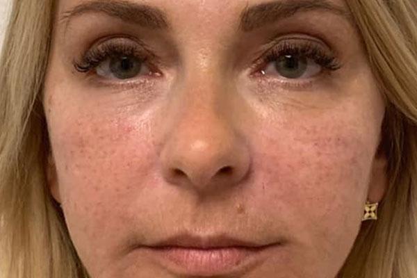Faltenbehandlung mit Botox (Botulinum),Patient1nachher