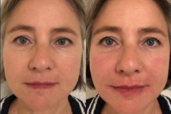 Behandlung Gesichtsverjüngung
