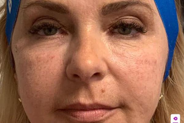Faltenbehandlung mit Botox (Botulinum),Patient1vorher