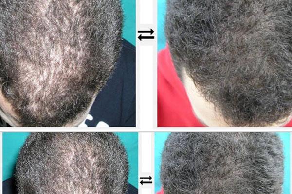 Haarregeneration ohne Transplantation