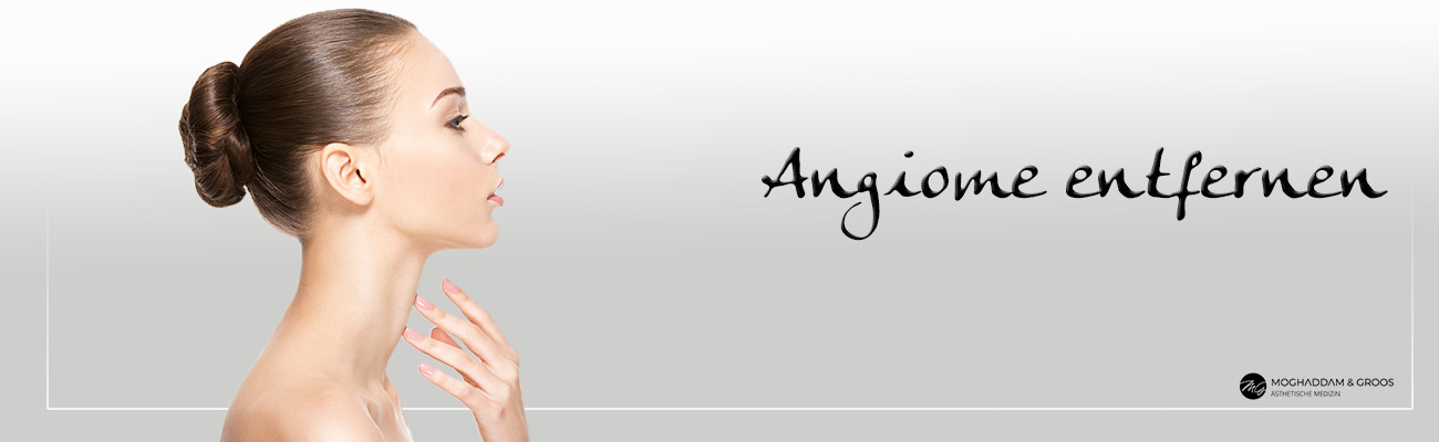 Angiome entfernen Banner
