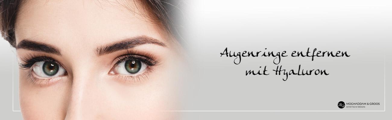 Augenringe entfernen mit Hyaluron
