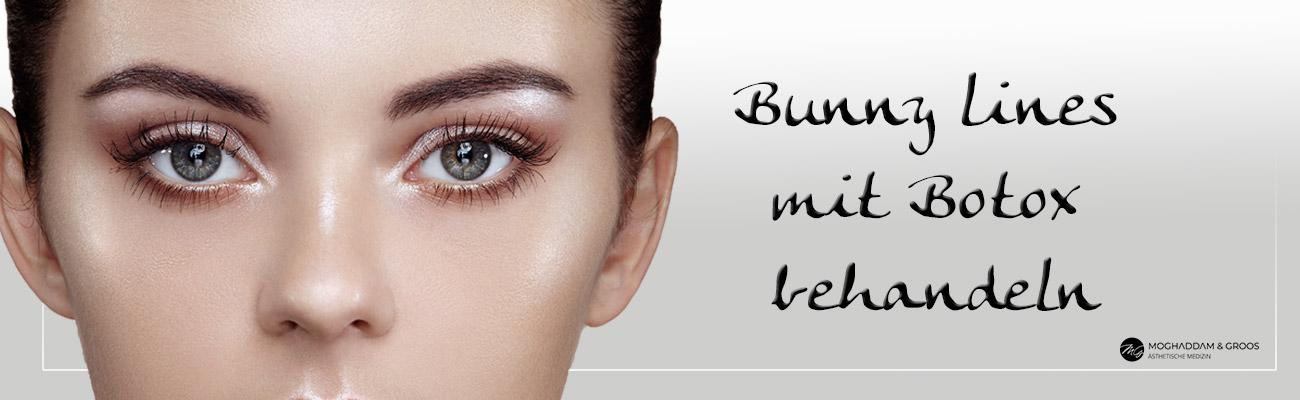 Bunnylines mit Botox behandeln