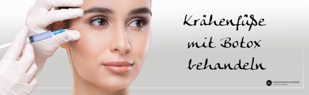 Krähenfüße mit Botox behandeln