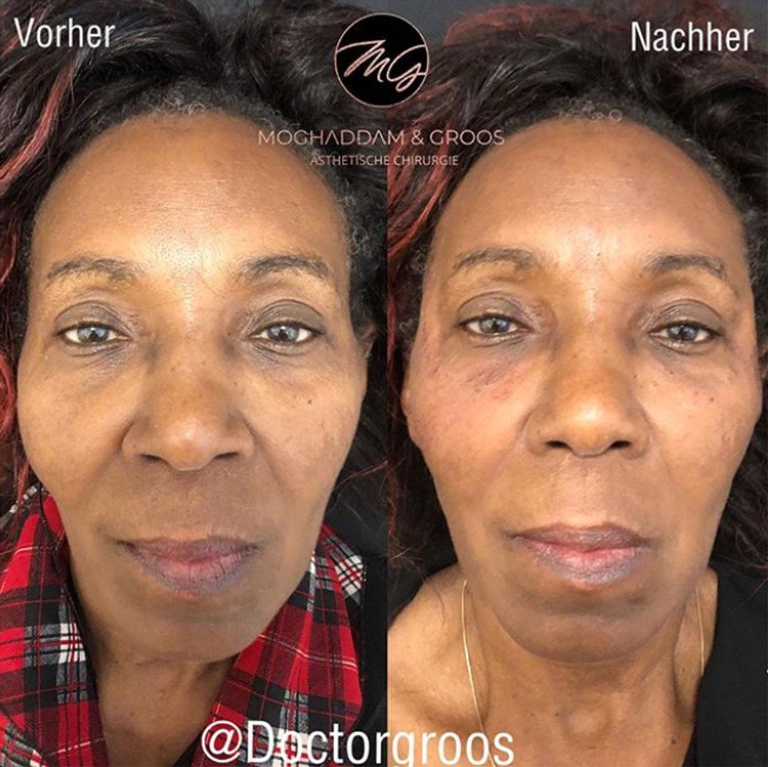 Schläfen- und Stirnaufbau mit Hyaluron/Radiesse