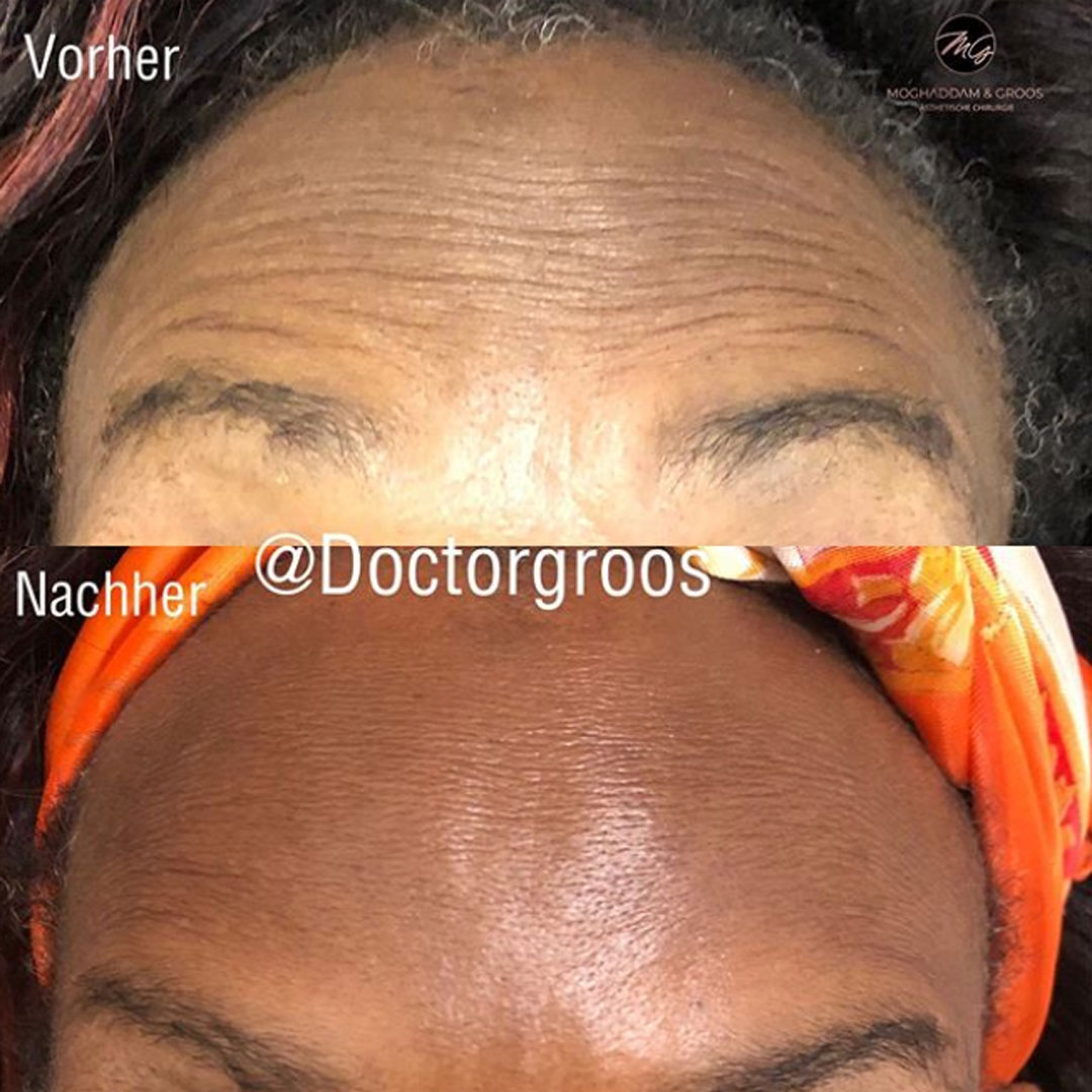 Stirnfalten mit Botox behandeln