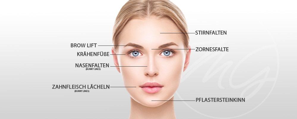 Faltenbehandlung mit Botox (Botulinum)- Anwendungsbereiche